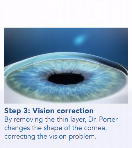 Lasik Laser Vision Correction In Raleigh What Is Smile